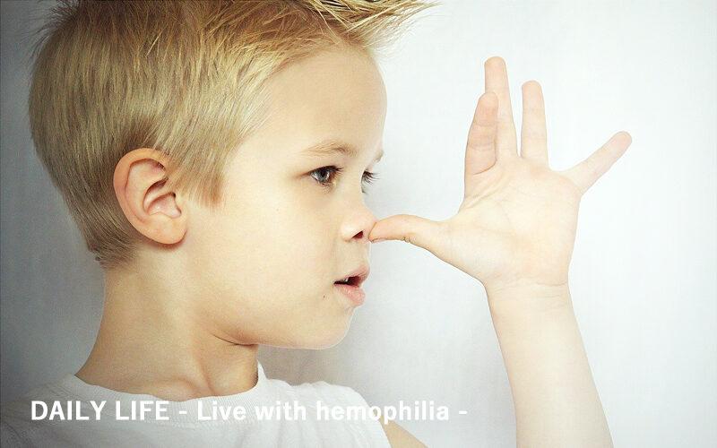 『鼻血のメカニズム』今と昔は違う?鼻血の適切な止血法を学び出血に備えよう